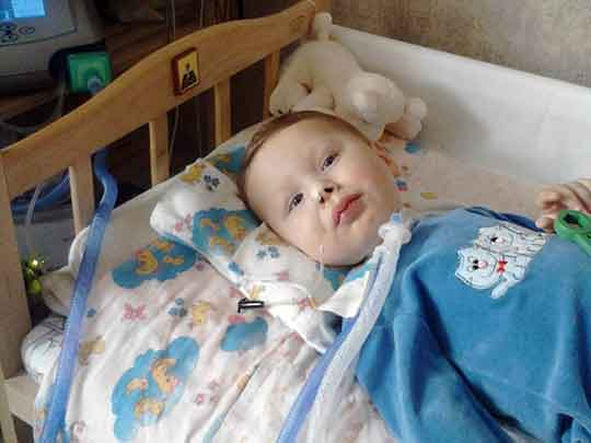 Крымчанин Максим Казачков живет в Симферополе на аппарате искусственного дыхания