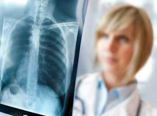 туберкулез в ВСУ
